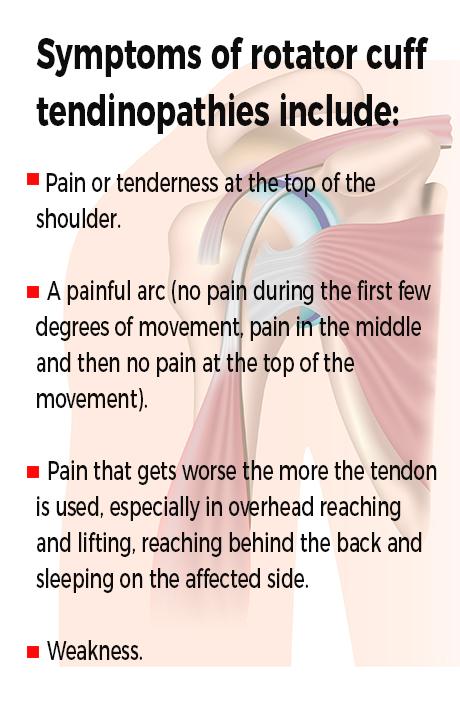 Shoulder injury pole fitness